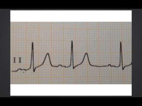 É possível ter romã pressão arterial elevada