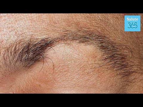 Quello che è la caramella possibile a dermatite atopic