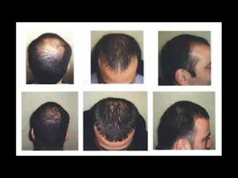 Maschere contro una perdita di capelli senza uova