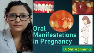 Oral Manifestations in Pregnancy