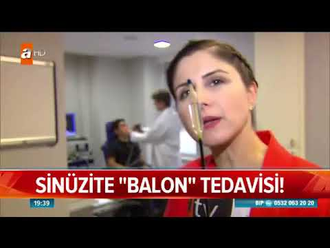 Sinüzite Balon Tedavisi