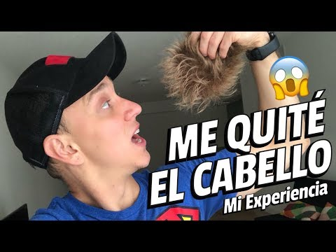 LA VERDAD SOBRE MI PROTESIS CAPILAR  *Muestro cómo hago el mantenimiento* - Oscar Alejandro