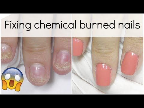 Extremely damaged nail transformation - How to fix it with Polygel