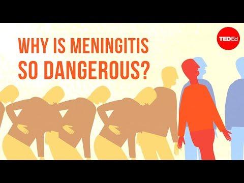 Why is meningitis so dangerous? – Melvin Sanicas