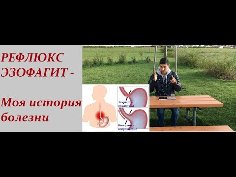 РЕФЛЮКС ЭЗОФАГИТ - Моя история болезни