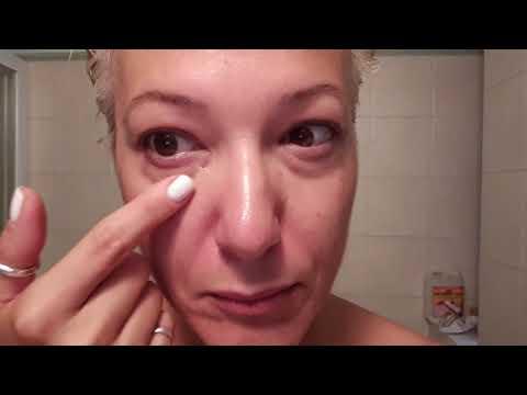 Affronti pacchi come Botox