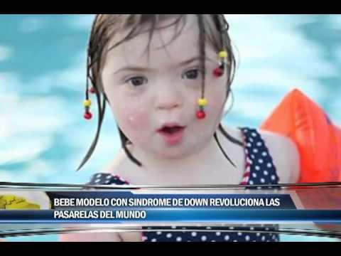 Ver vídeoSíndrome de Down: Bebé Modelo