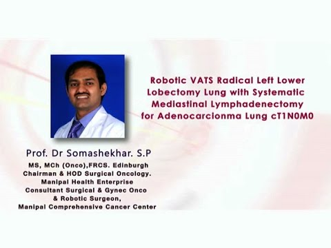 Robotic VATS Radical Left Lung Lower Lobectomy