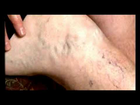 Thrombophlebitis chokeberry