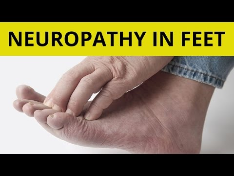 Video Peripheral Neuropathy Treatment | 9 Tips On How to Handle Neuropathy in Feet!