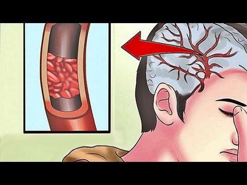 Les symptômes de lhypertension orthostatique