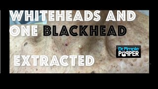 Whiteheads and one big blackhead extracted