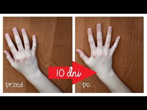 Jak zmniejszyć szyszki na palcach