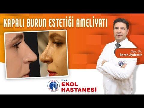 Kapalı Burun Estetiği Ameliyatı - Opr. Dr. Baran Aydemir - İzmir Ekol Hastanesi