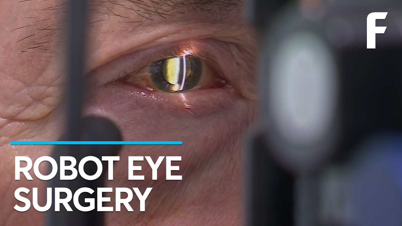 A Robot Just Performed Eye Surgery