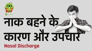 नाक बहने के कारण और उपचार   #Nasal #Discharge In #Hindi   #Healthyho
