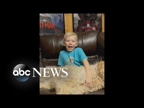 Hero 6-year-old boy bitten by dog shares update   WNT