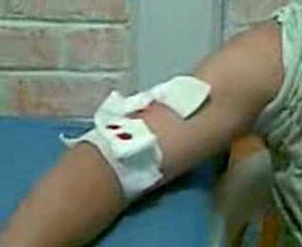 Condiciones de almacenamiento de las formulaciones de insulina