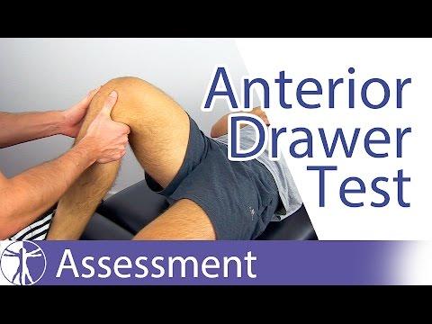 Artroza articulațiilor intervertebrale ale tratamentului coloanei lombare