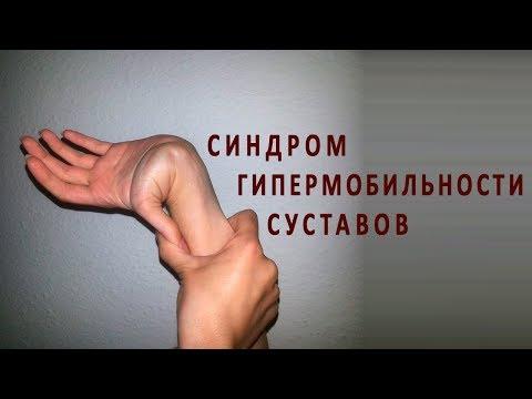 Синдром гипермобильности суставов