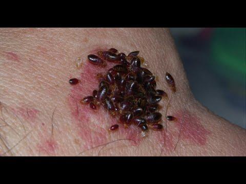 Tableta rotundă de vierme
