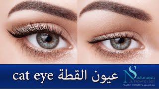 عيون القطة Cat Eye معالجة تبطينة العين بشد الجفن العلوي, الدكتور نورس صافي دمشق سوريا سورية