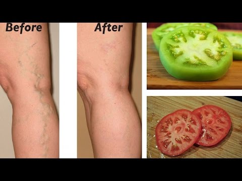 Video Natural Remedies for Varicose Veins | Natural Cures