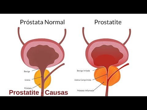 Trattamento di prostatite knotweed