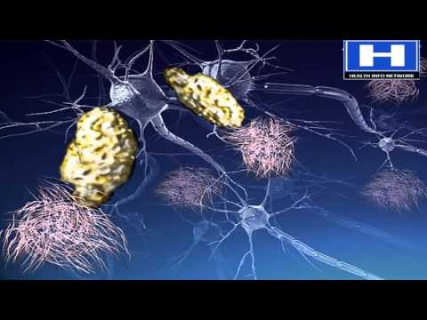 Video Alzheimer's disease Pathophysiology, Symptoms, Causes and Treatment | 3D animation