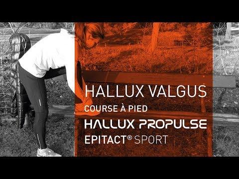 Hallux valgus ความคิดเห็นความสะดวกสบาย