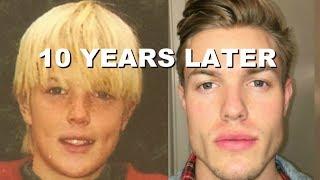 My Full 10 Year Jawline Transformation