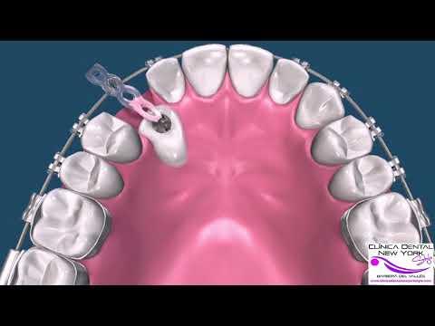 Cirugía de tracción tratamiento de Ortodoncia (CANINO)