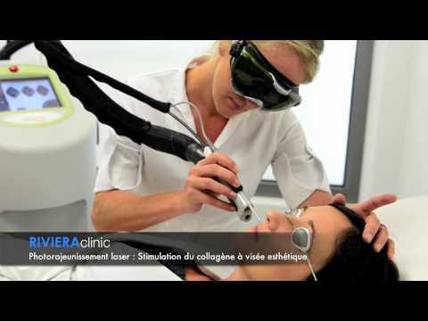 Le nettoyage laser de la personne à permi les prix