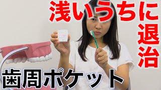 歯周ポケットは浅いうちに退治する!