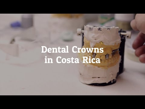 Important-Facts-About-Dental-Crowns-in-Costa-Rica