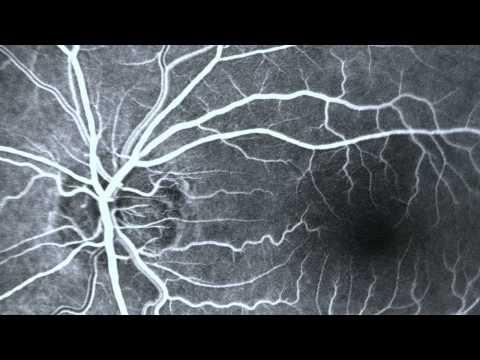Точки для снятия глазного давления