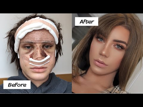 Download My plastic surgery in Korea experience! (part 2) Mp4 HD Video and MP3