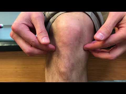 Datorită durerii de osteochondroză la nivelul articulațiilor umărului