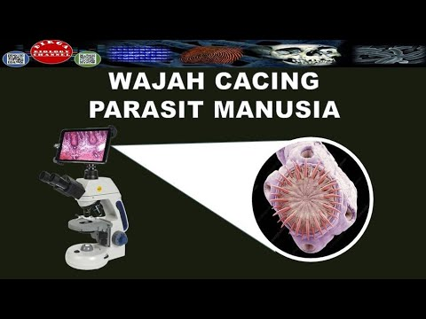 Pinworms hogyan kell kezelni őket emberben