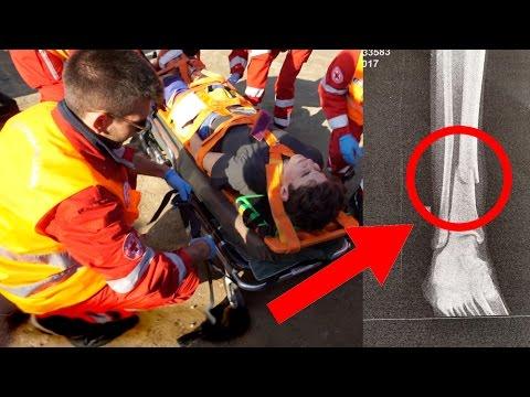 Le artrite al ginocchio Sport
