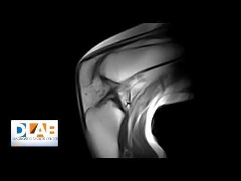 Artrosi dellarticolazione metatarso-falangea di entrambi i piedi