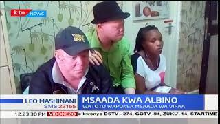 Watoto walio na ulemazu wa ngozi, albinism, wapokea msaada wa vifaa