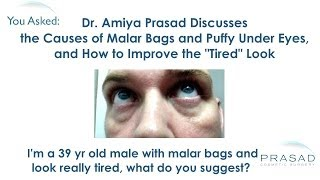 The Causes of Malar Bags and Puffy Eyes and How they Can Be Treated