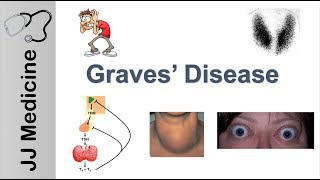 Graves Disease and Graves Ophthalmopathy | Signs, Symptoms, Diagnosis and Treatment