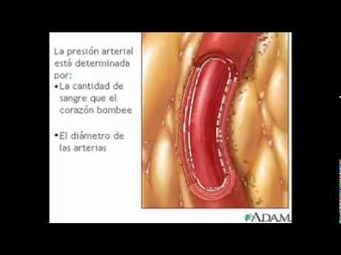 Hipertensión y enfermedad cardiovascular