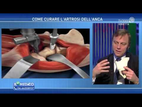 Come diagnosticare osteocondrosi toracica