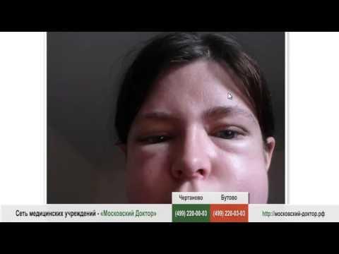 Пигментация кожа лица народные средства