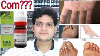 Corn! Homeopathic medicine for corn?? corn on foot corn on finger corn on hand!! explain!