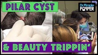 A very META Pilar Cyst POP: Dr Pimple Popper & Beauty Trippin