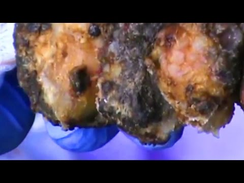 Uova di dimensioni di verme